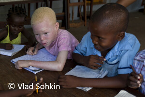 An albino in Mozambique by Vlad Sokhin