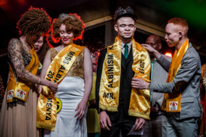 Mr_and_Miss_Albinism
